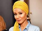 Jada Pinkett Smith goes public with alopecia